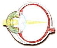 L'occhio con cristallino trasparente permette una normale focalizzazione